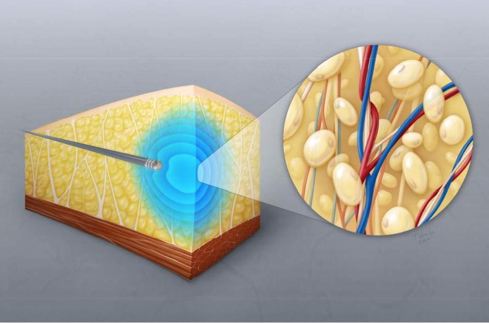 Fett abbauen mit Ultraschall