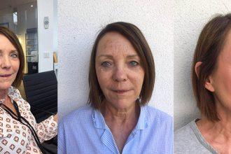Mesotherapie für die Gesichtshaut im Test mit Vorher- nachher Bildern