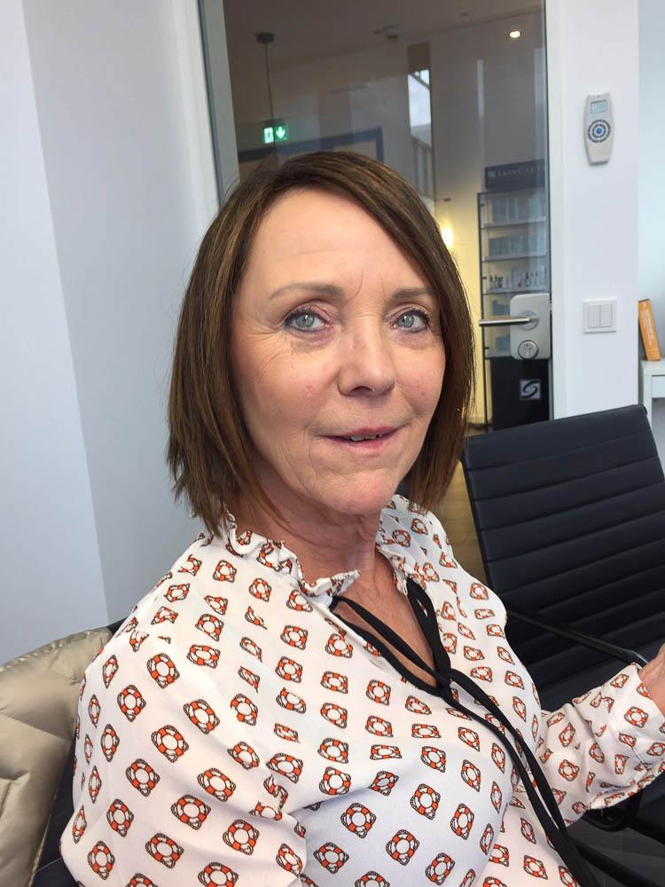 Beatrix Scharpenberg testet die Mesotherapie in der KÖ-Klinik in Düsseldorf - VORHER Bild