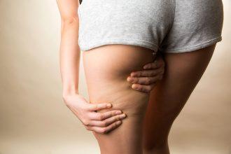 Cellulite reduzieren - Ratgeber: die besten übungen gegen Cellulite