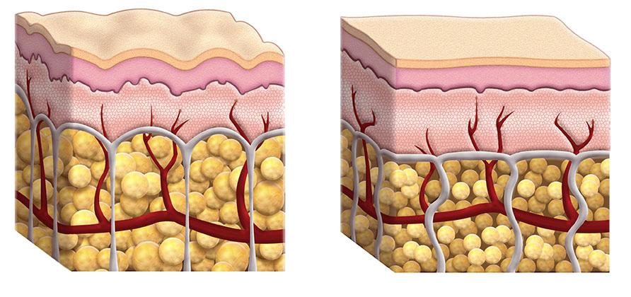 Cellulite was ist das? Hautstruktur bei Cellulite
