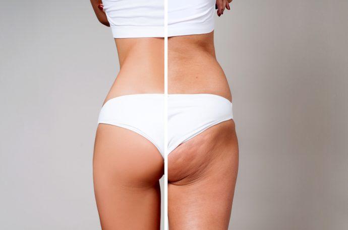 dünn und trotzdem cellulite