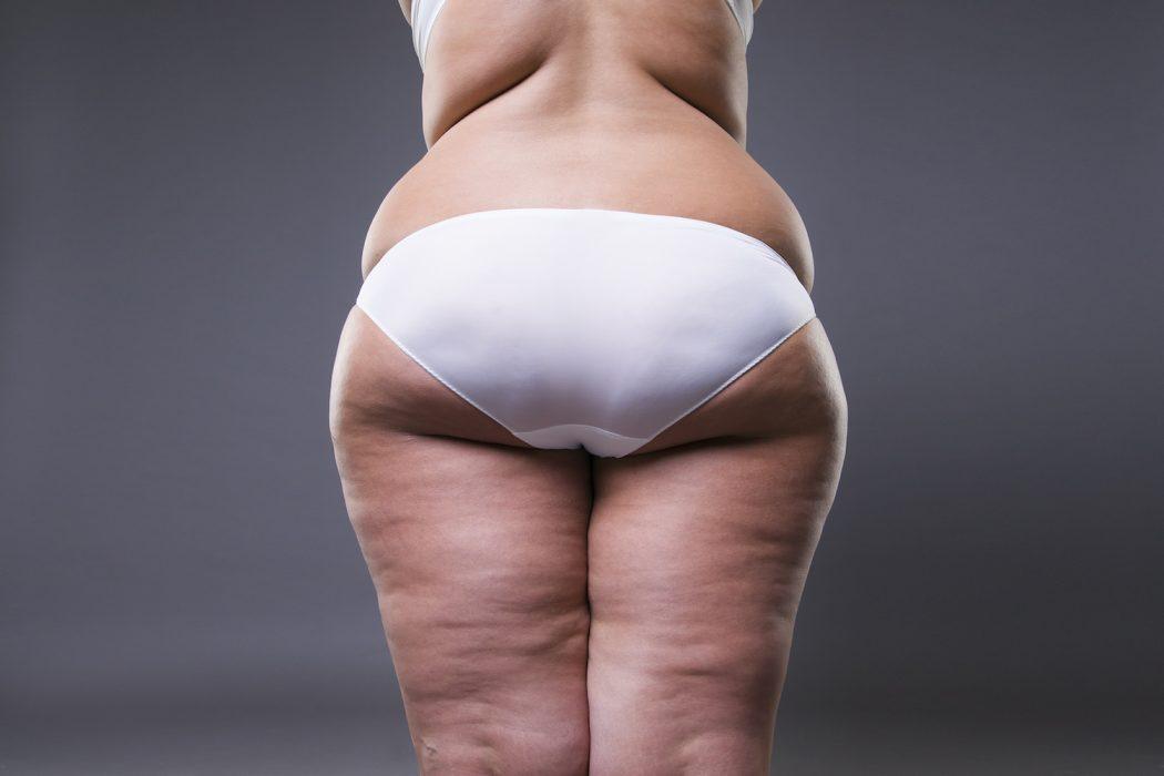 Training gegen dicke Oberschenkel - do trainierst du für schöne schlanke und definierte Beine